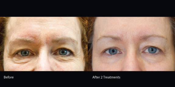 Exilis-eye-skin-tightening-redondo