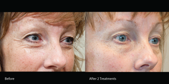 Eye Bags And Turkey Neck Cosmetic Amp Surgical Laser Rental