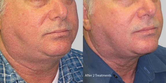 Exilis-male-neck-skin-tightening-hermosa-beach