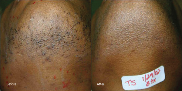 Hair-removal-laser-rental los angeles