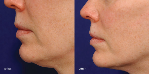 Skin-tightening-laser rental los angeles