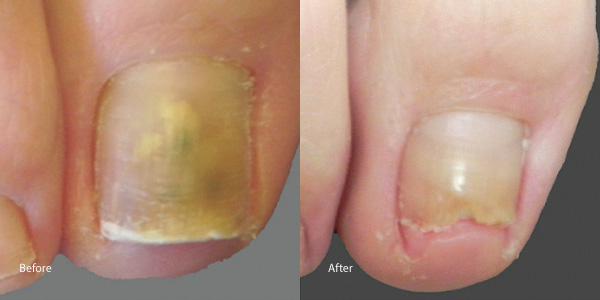 Toe-nail-laser-rental los angeles