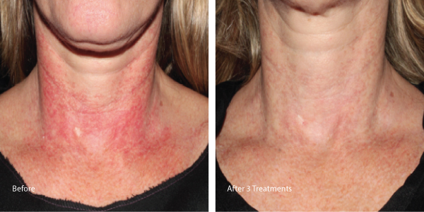 Rent Cosmetic Laser To Treat Veins Los Angeles