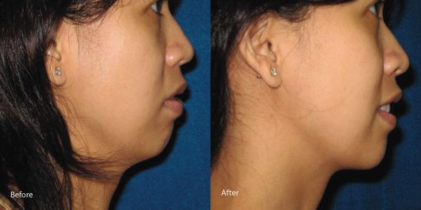 skin-tightening-laser-rental-torrance