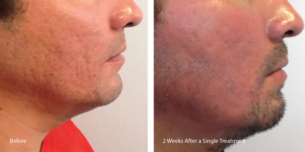 Acne-Scars-CO2-B&A-labled