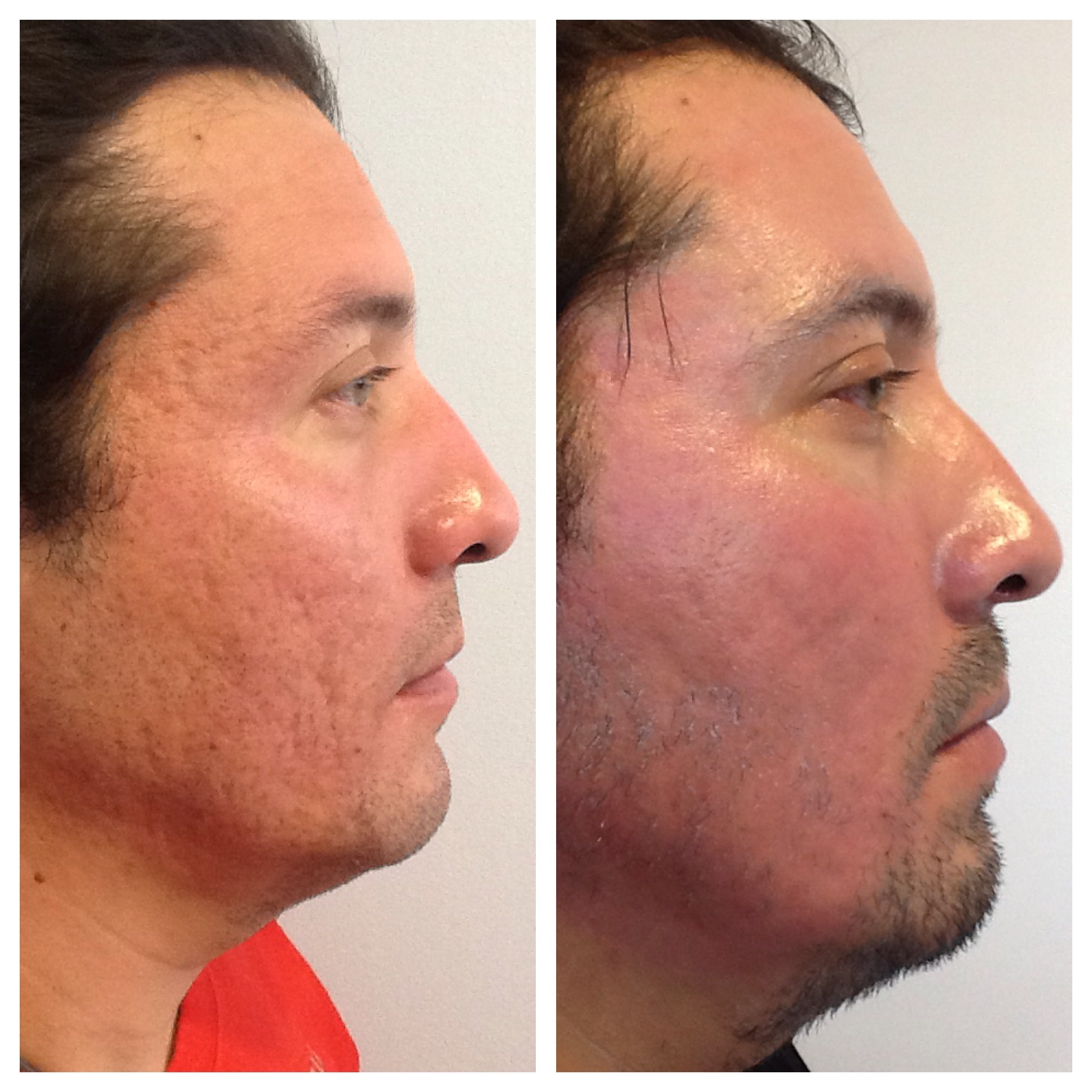 Fractional CO2 Laser Rental to Treat Ance Scars and Sun ...