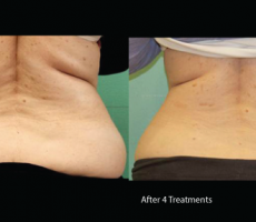 Exilis-back-fat-los-angeles laser rental