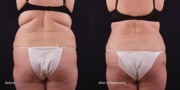 Exilis-fat-melting-los angeles laser rental