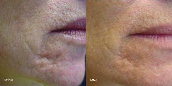 acne-scars-laser-genesis-redondo-beach