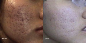 Acne-scar-laser-torrance