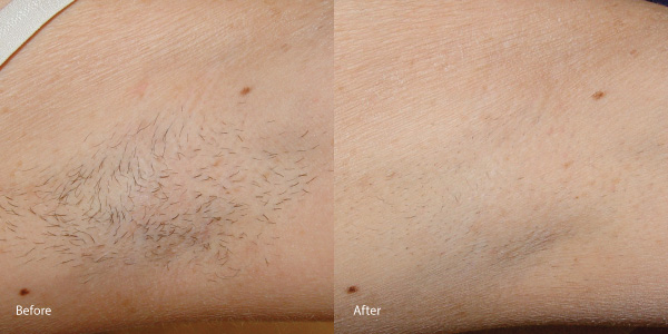 Hair-removal-laser-rental hermosa-beach