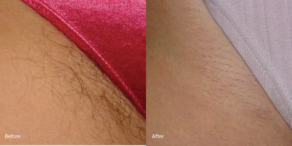 Hair-removal-laser-rental-torrance