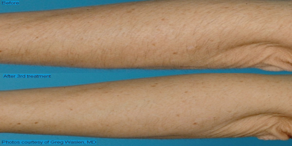 Hair-removal-laser rental westlake village