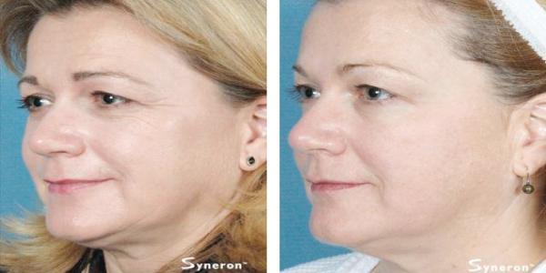 Skin-tightening-laser rental