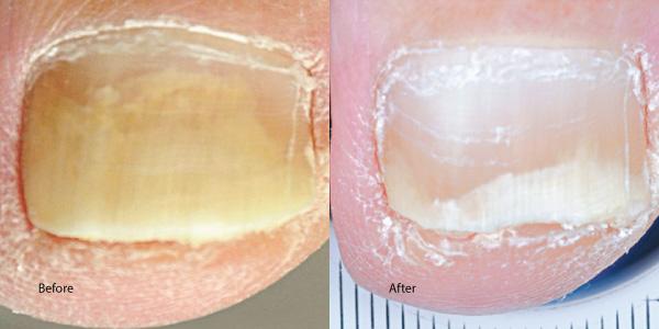 Toe-nail-laser-rental santa monica